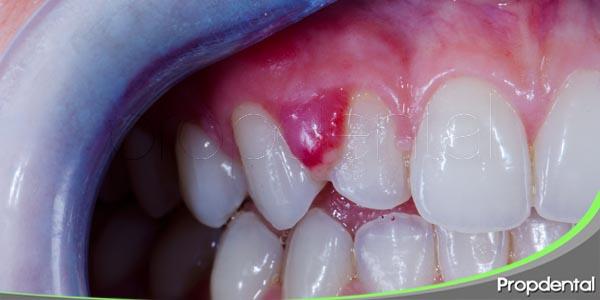 abcesos del periodonto