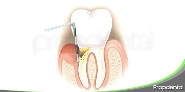 características de la periodontitis crónica