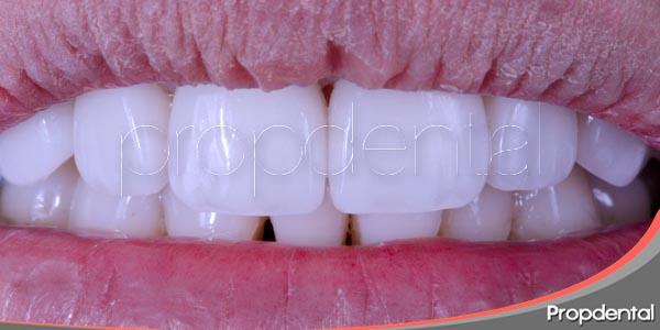 carillas de porcelana para corregir los dientes deciduos