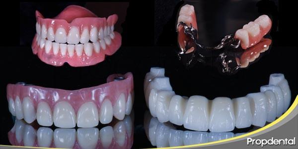 clasificación de prótesis