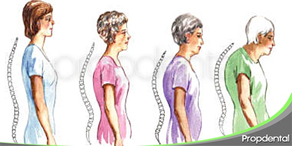 como afecta la osteoporosis a tu boca