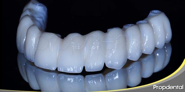 complicaciones durante el tratamiento con implantes dentales