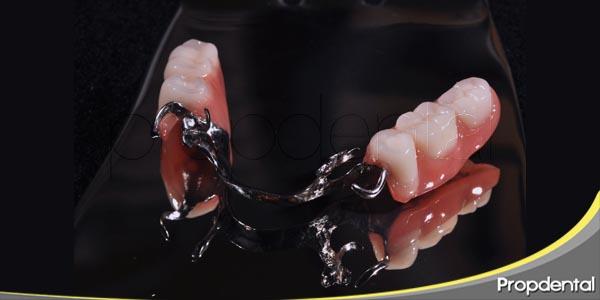 consecuencias de las prótesis parciales removibles
