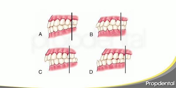 consideraciones oclusales en prótesis dentales