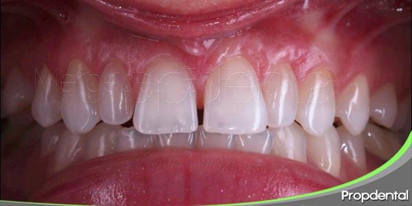 diastema dental la nueva moda