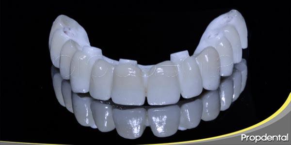 dientes nuevos con implantes dentales en un día