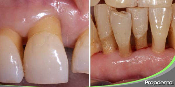 ¿Cuales son las diferencias entre periodontitis agresiva y crónica?