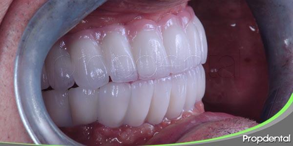 efecto de las parafunciones en el tratamiento con implantes dentales