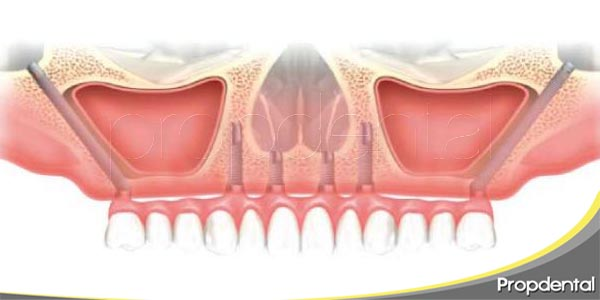 el tratamiento con implantes cigomáticos