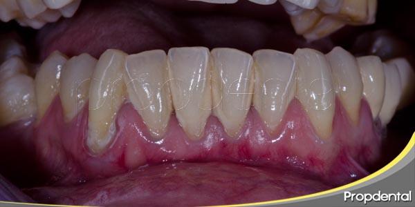 enfermedades periodontales y los implantes dentales