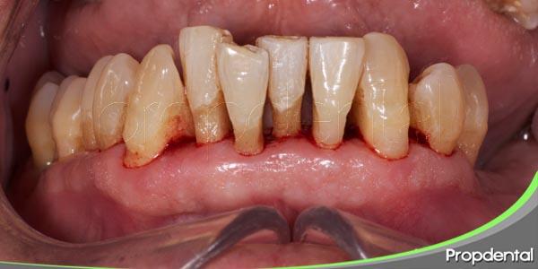 etiología de la enfermedad periodontal