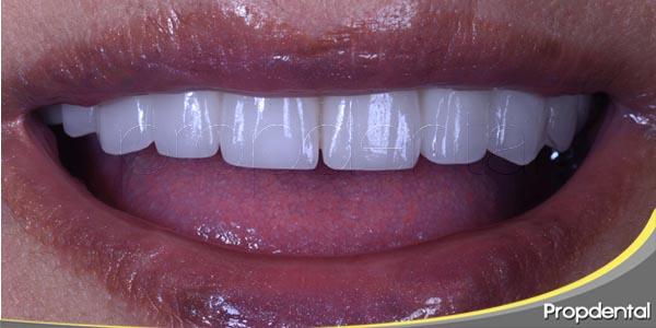 evaluación estética de la rehabilitación implantológica