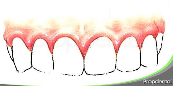 factores de riesgo de la gingivitis