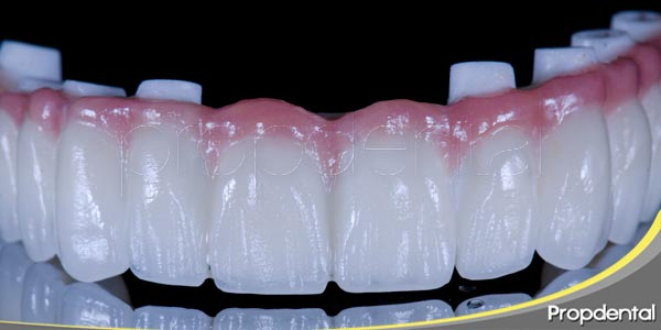 la carga implantaria en un implante dental