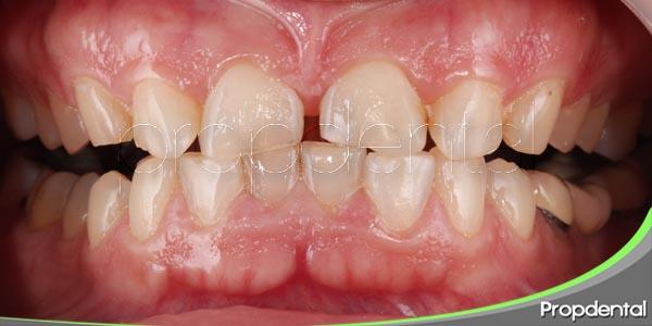 la erosión dental o el desgaste de los dientes
