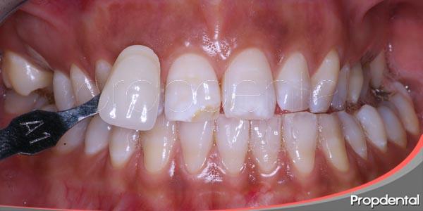 la mejor solución para las manchas dentales