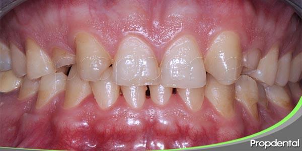 las agenesias dentales