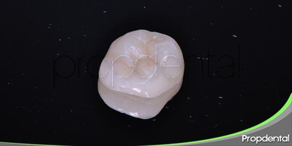 las coronas dentales como solución estética y funcional