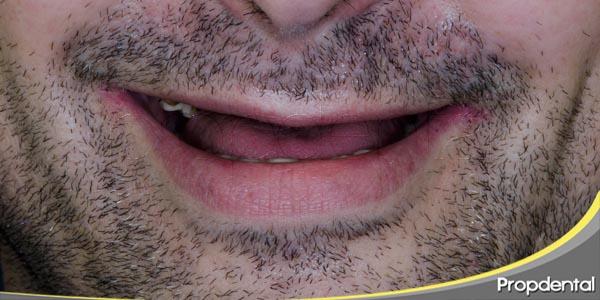 las peores consecuencias de la pérdida de dientes