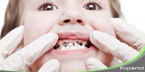 Los dientes negros en los niños