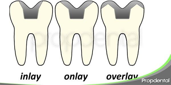los tallados para coronas parciales inlay onlay y overlay