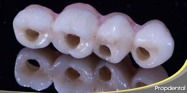 objetivo de los implantes dentales