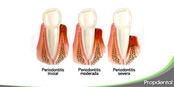 periodontitis agresiva vs periodontitis crónica