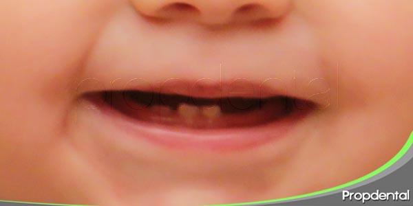 posibles fallos en la erupción dentaria