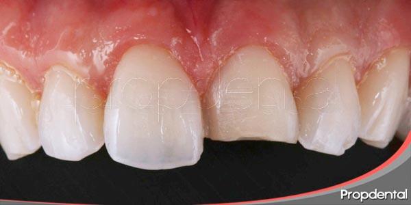 posibles soluciones para tratar las fracturas dentales