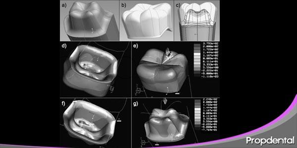 procera el sistema cad cam más utilizado por los dentistas