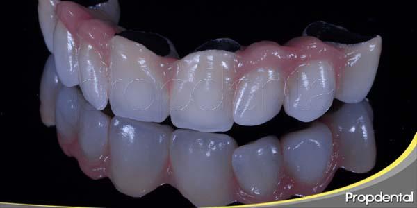 razones del aumento de la demanda en implantes dentales