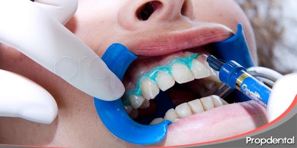 requisitos para someternos a un blanqueamiento dental