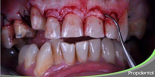 respuesta del paciente ante la cirugía dental