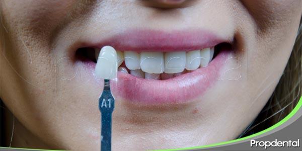 selección del color en prótesis dentales