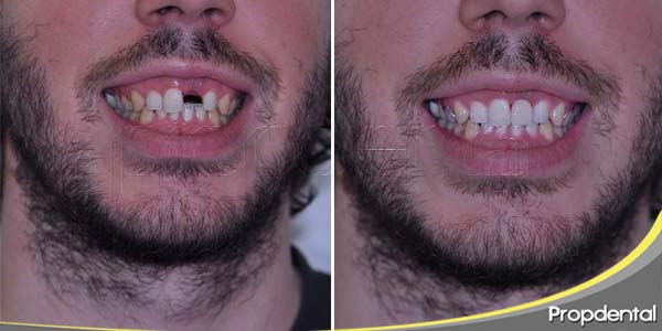 solucionar la ausencia de un diente aislado