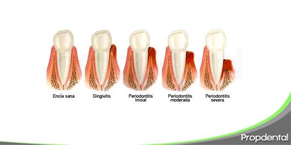 tipos de enfermedad periodontal