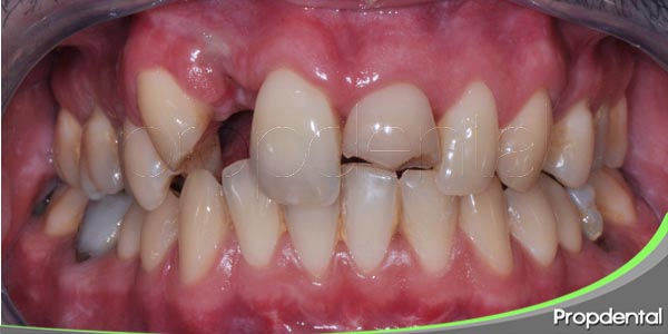 tipos de fracturas dentales