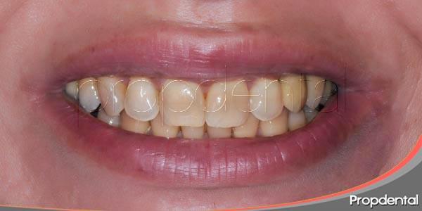 tipos de manchas dentales