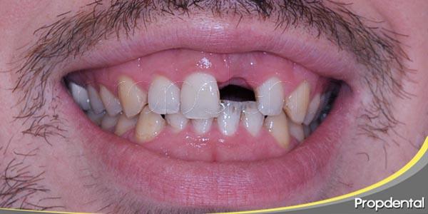 todas las opciones para recuperar un diente perdido