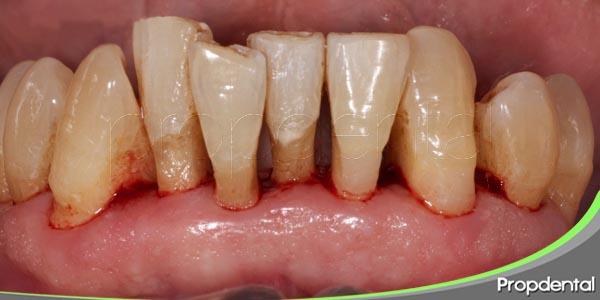 tratamiento de la periodontitis crónica