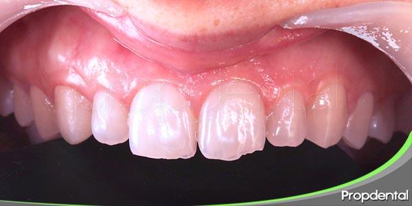 traumatismos en los dientes