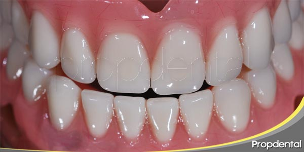 urgencias dentales relacionadas con las prótesis