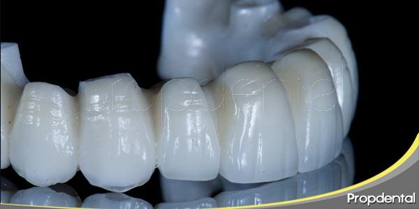ventajas de las prótesis sostenidas sobre implantes