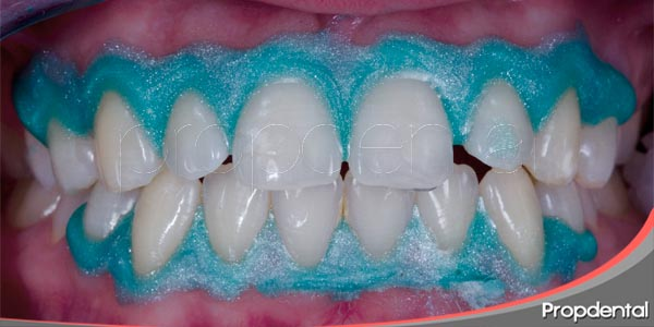 blanqueamiento dental previo al uso de carillas dentales