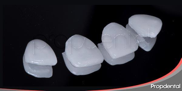 carillas de porcelana y sus múltiples aplicaciones
