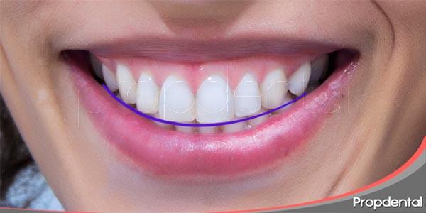 como conseguir una sonrisa simétrica e ideal