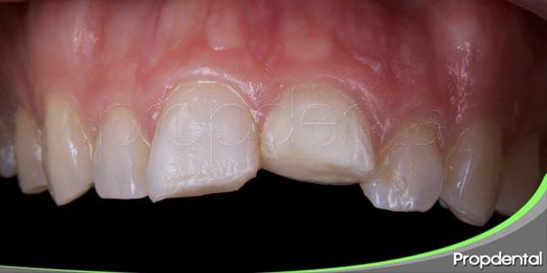 dientes fracturados