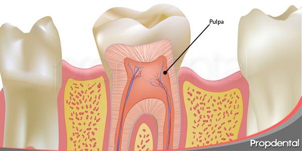efectos sobre la pulpa después de un blanqueamiento dental