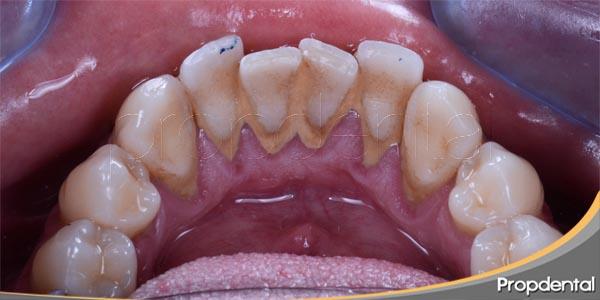 enfermedad periodontal y sarro