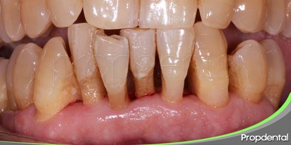 ¿Que es la enfermedad periodontal?